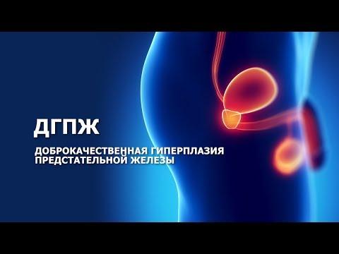 ДГПЖ - Доброкачественная гиперплазия предстательной железы