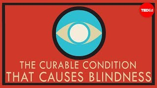 A curable condition that causes blindness - Andrew Bastawrous