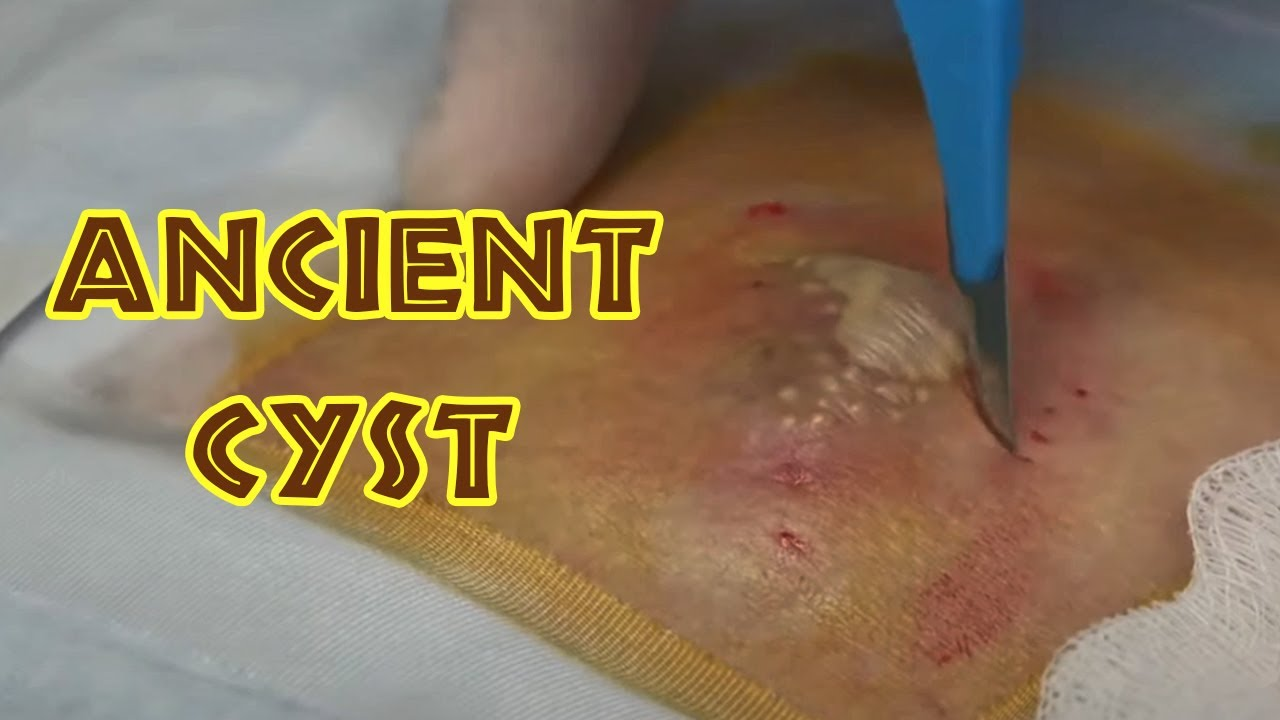 Cherub's Ancient 40 Year-Old Cyst Finally Treated!
