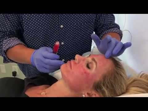 Dr. Chen - Microneedling + PRP