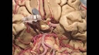 Orbital frontal gyrus