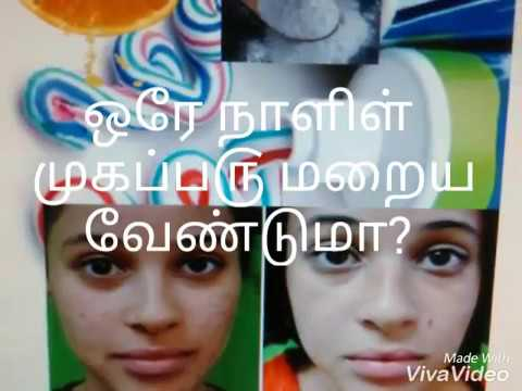 Overnight One Day Pimple Cure Tamil Mugaparu Maraya Tips