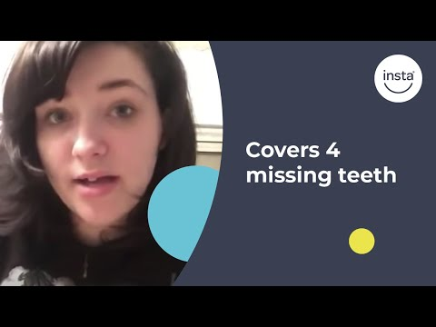 Instasmile Covers 4 Missing Teeth For A Complete Smile Transformation