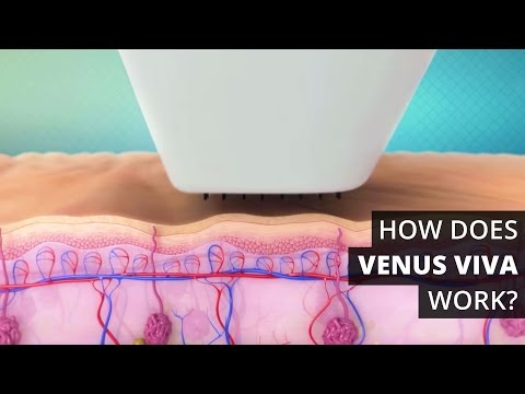 How Does Venus Viva™ Work?