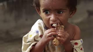 6 детей, которых воспитали животные | Синдром Маугли