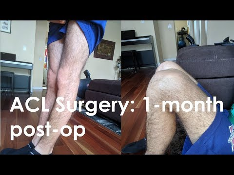 ACL + Meniscus Surgery: 1 month post-op
