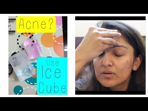 Ice cube : Home Remedy for Acne