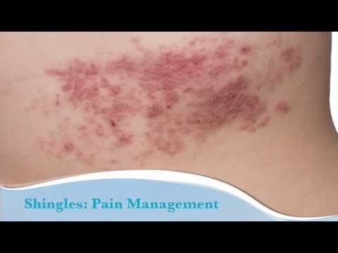 Shingles What It's and the way to Prevent It