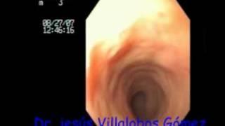 Colitis Folicular Titulo Jv.mpg