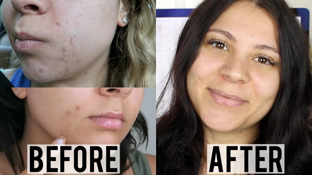 how to use dermaroller at home for acne scars
