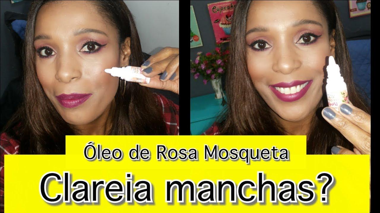 Oleo De Rosa Mosqueta Clareia Manchas No Rosto Youtube