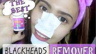 THE BEST BLACKHEADS REMOVER! | Purpleheiress