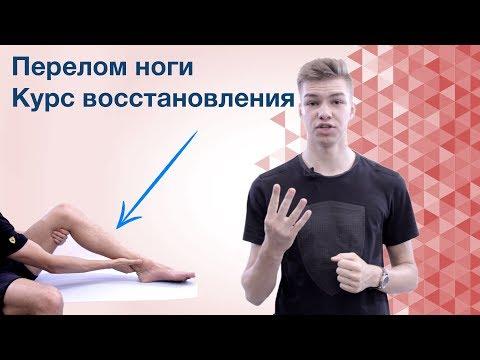 Как разработать ногу после гипса
