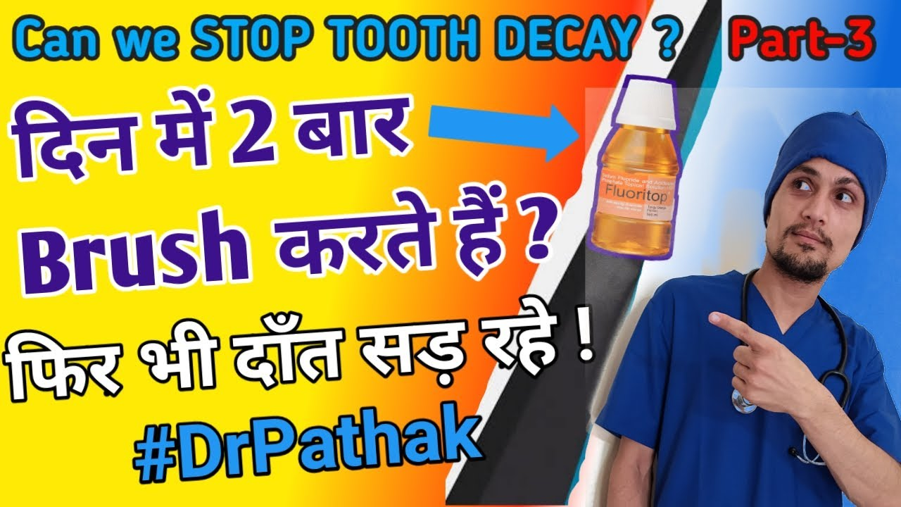 Download Dental Cavities Treatment? TOOTH DECAY Prevention tips & Causes | Fluoride toothpaste Dr Pathak