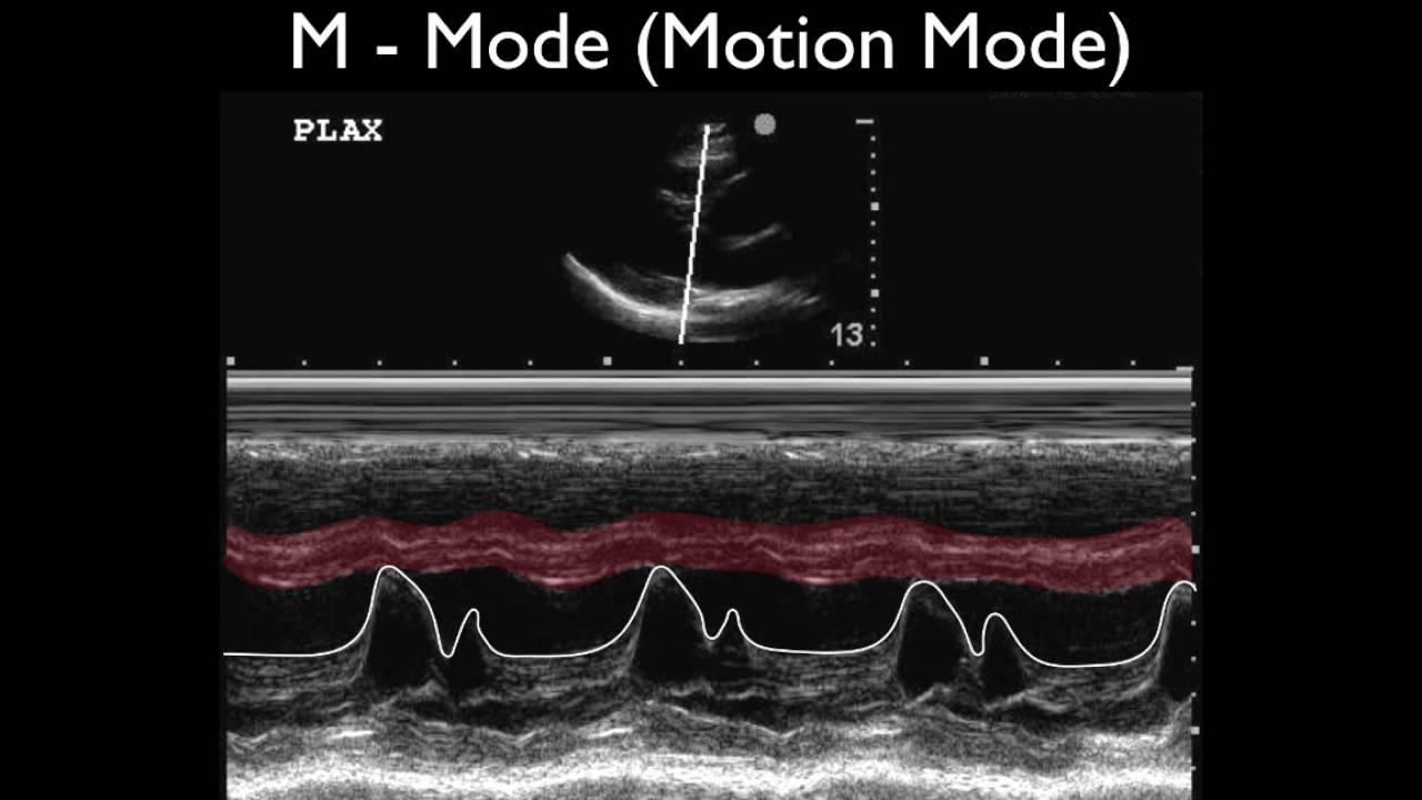 Ultrasound Physics Scanning Modes M Mode