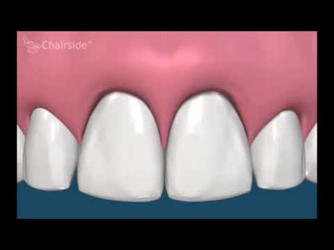Лечение и пломбирование корневых каналов зубов, подробное видео.