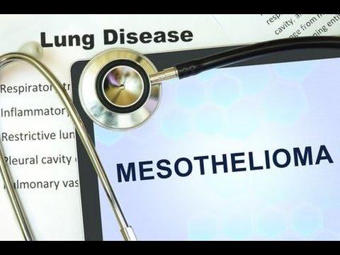 lawsuit-commercial-adam-pulaski-on-mesothelioma