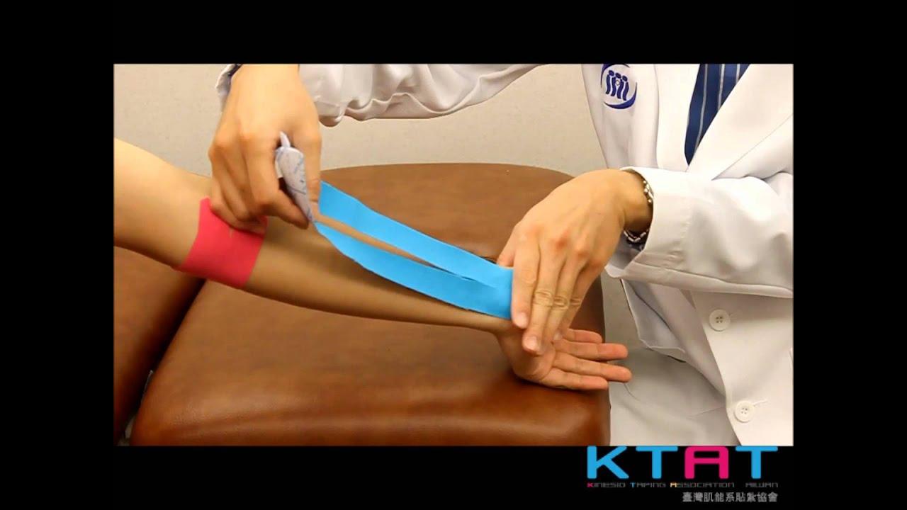 Kinesio Tex Gold 減輕高爾夫球肘疼痛問題貼法 - YouTube