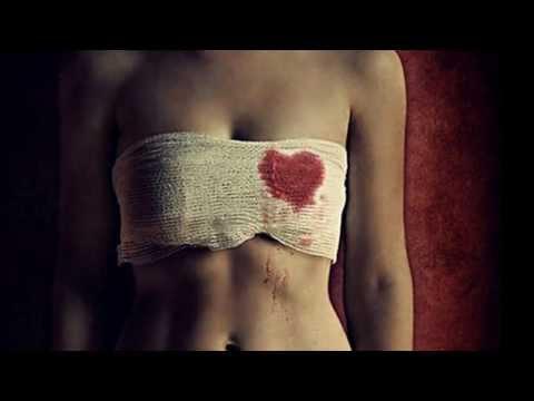 Herida de Amor Grupo Yndio