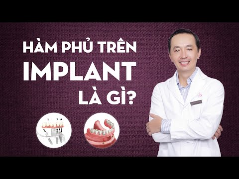 Hàm phủ trên implant là gì | Hàm tháo lắp trên Implant là gì?
