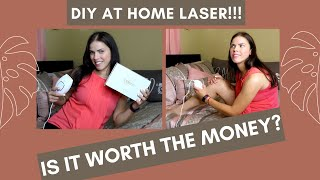 KENZZI AT HOME LASER HAIR REMOVAL | (NON SPONSORED REVIEW + TUTORIAL)