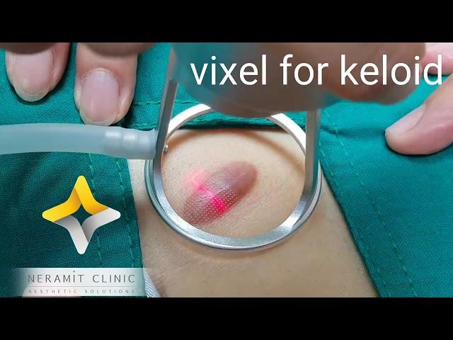 รักษาแผลเป็นนูน คีลอยด์ (Keloid)  ปัญหากวนใจรักษาด้วย VIXEL LASER