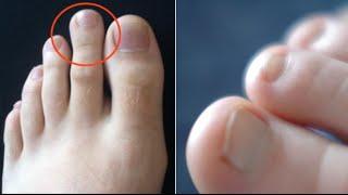 Hinchado pie segundo derecho del dedo
