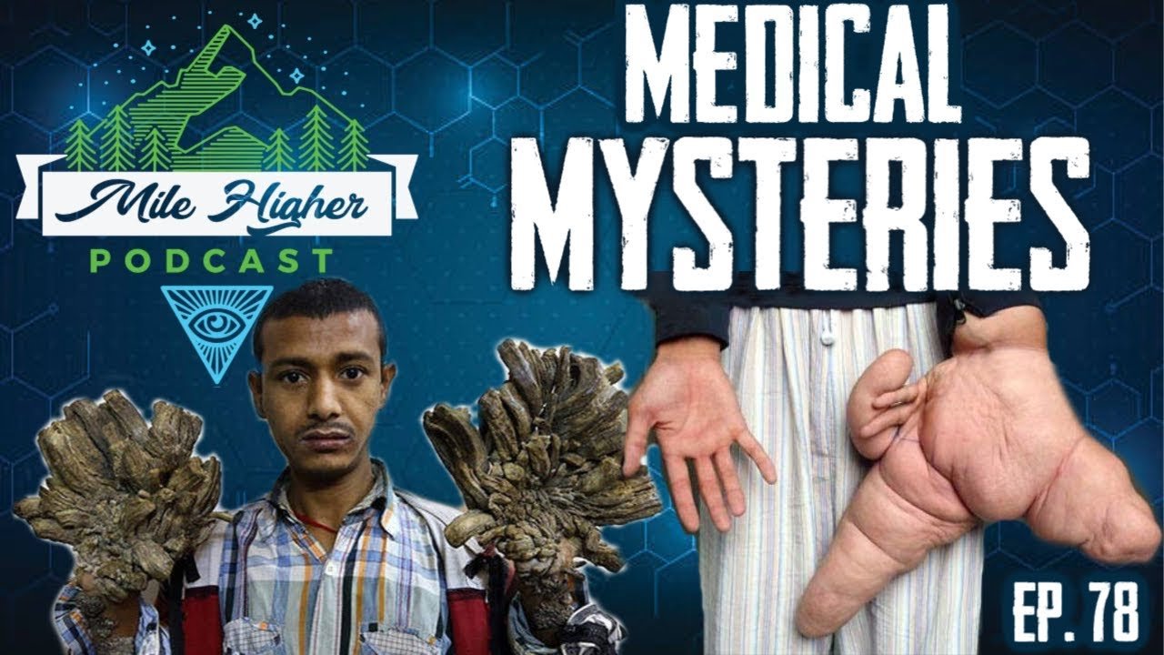 Unexplained Medical Mysteries Podcast 78 Youtube
