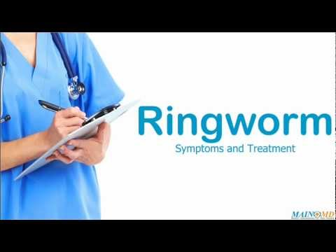 Ringworm ¦ Treatment and Symptoms