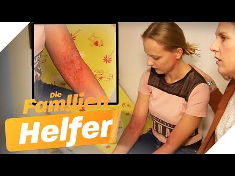 Schon Wieder Neurodermitis! Elina (15) Bekommt Professionelle Hilfe | Die Familienhelfer | SAT.1