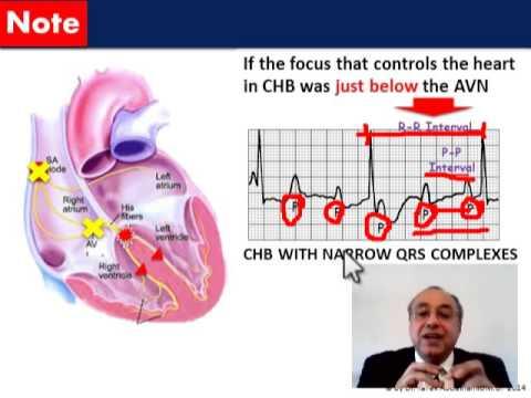 ECG HEART RATE