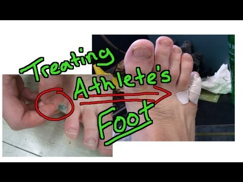 Athlete's Foot Part 2 – New Simple and Effective Treatment