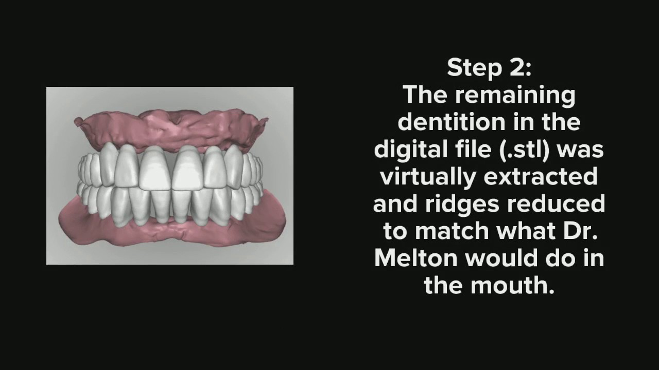 AvaDent Digital Denture and Implant Solutions from AvaDent