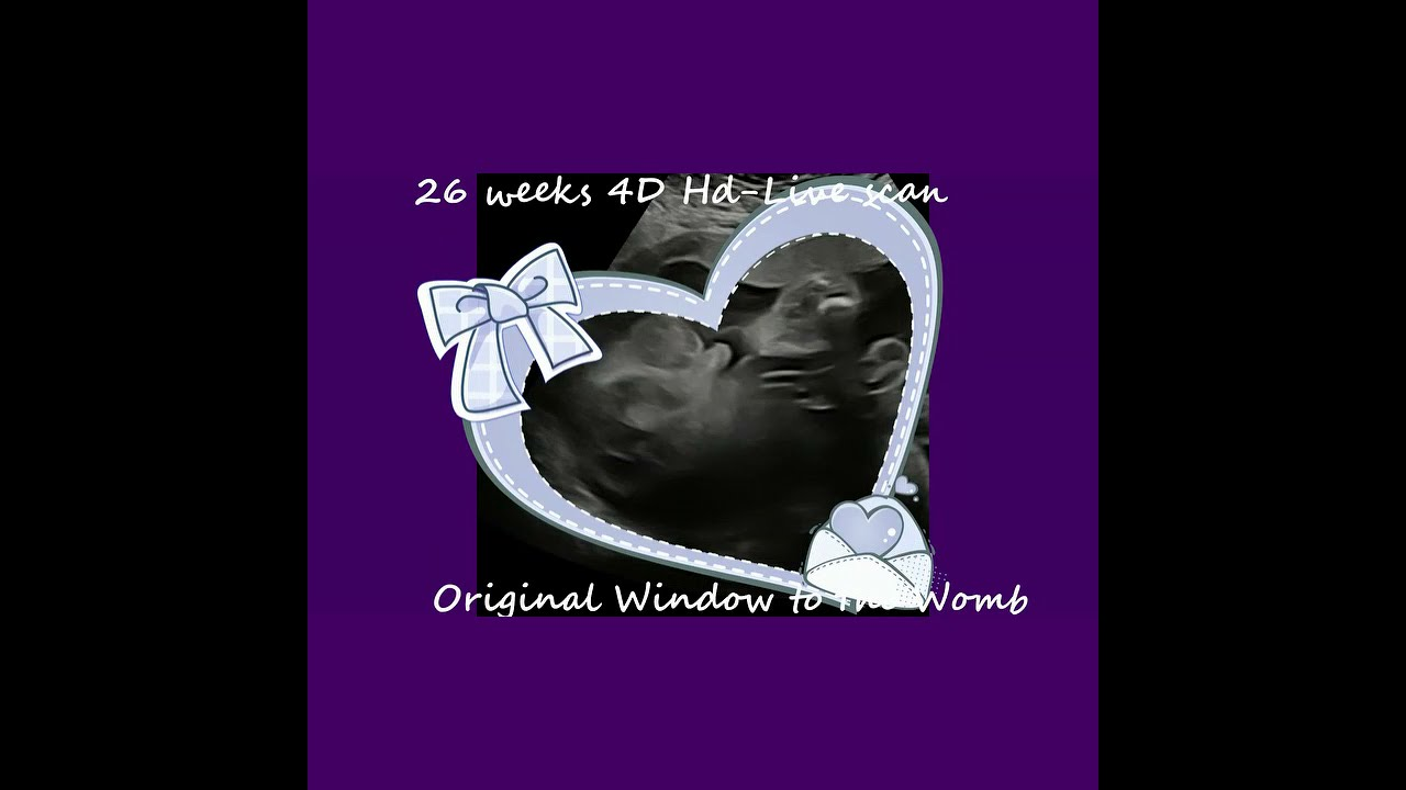 26 weeks. 3D 4D Ultrasound baby scan. The Original Window to the Womb Ltd