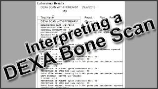 Interpreting Dexa Bone Scan