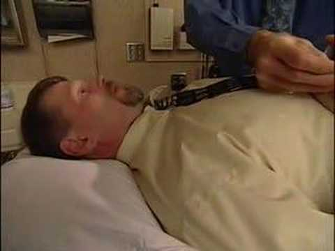 Acupuncture for Appetite Control-Mayo Clinic
