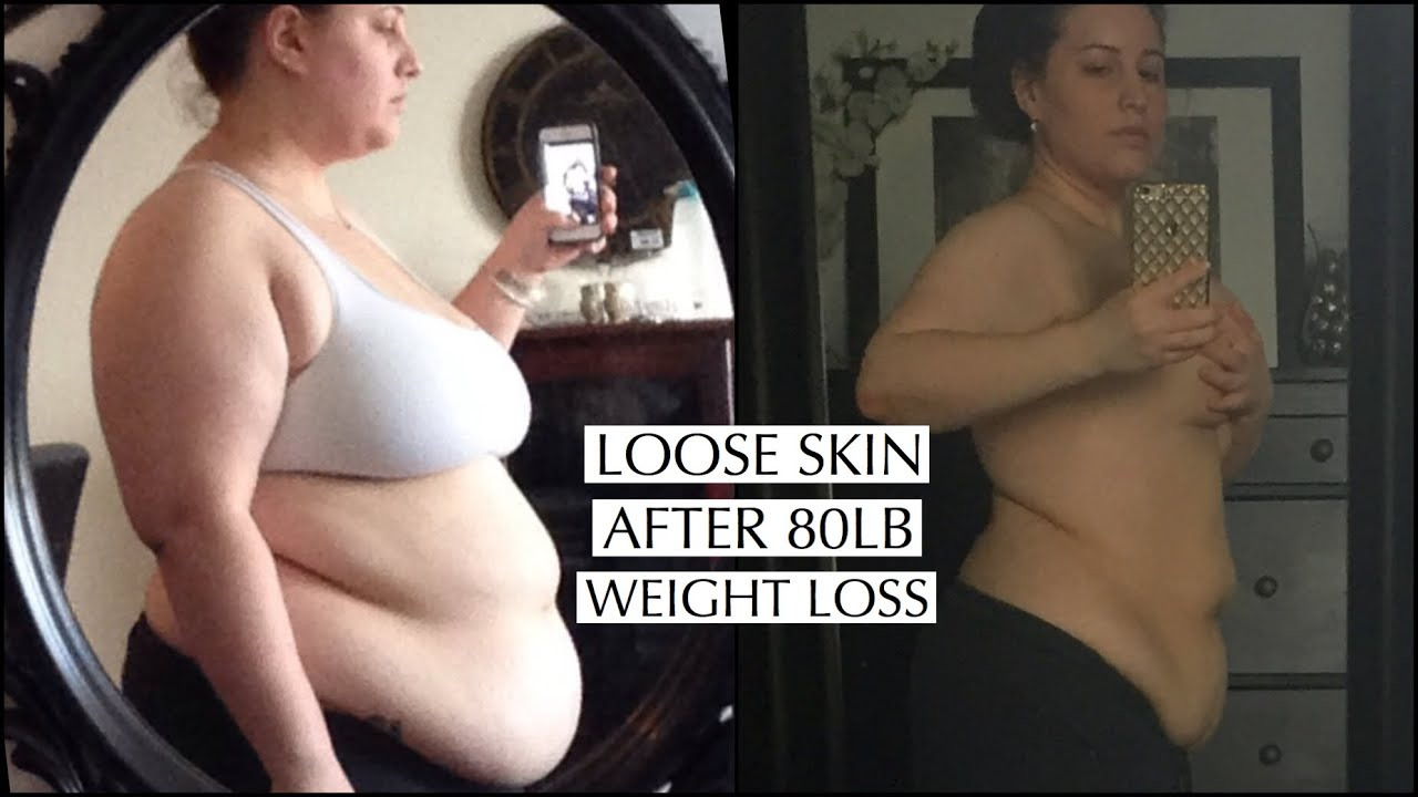 Showing My Loose Skin After Losing 80lbs Youtube