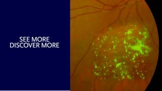 optomap Diagnostic Atlas Video