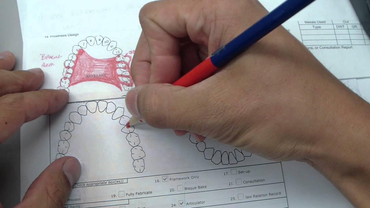 medium resolution of cast partial diagram