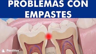 Problema de empastes – La obturación dental desbordada ©