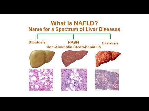 What is Non-Alcoholic Fatty Liver Disease (NAFLD)?