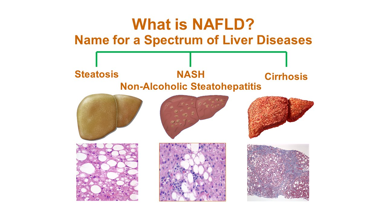 non alcoholic fatty liver disease Do you like this page tweet click for our online community.