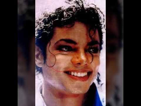 Michael Jackson Vitiligo Spots A Must Watch Youtube