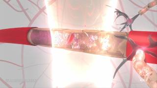Elisa Konofagou - Blood Brain Barrier Animation