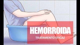 HEMORROIDA - SINTOMAS, TRATAMENTO E CURA - Dr. Marcelo Lima