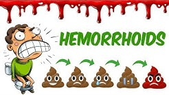 The Hemorrhoids!