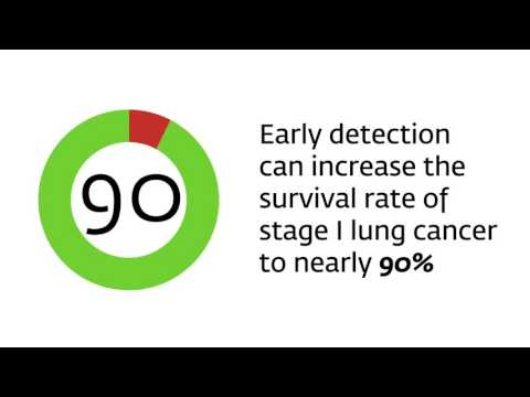 Lung Cancer Screening: The Facts from Lahey Health