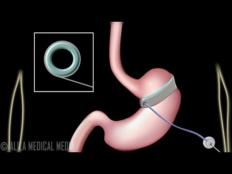 Gastric Sleeve And Lap Band Surgeries For Weight Loss Treatment, Animation.