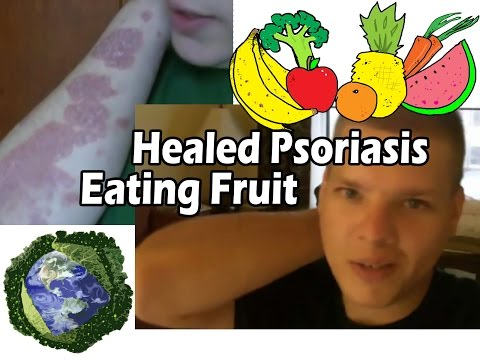 Heal Psoriasis Naturally - Raw • Vegan • Fruititarian • Plant-Based Cure