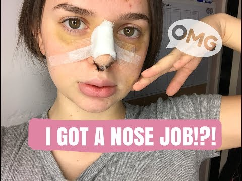 NOSE JOB VLOG SURGERY/RECOVERY